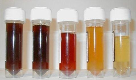 urin blod