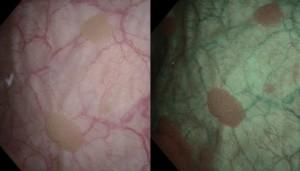 Bildet til venstre er tatt med vanlig hvitt lys, bildet til høyre er tatt med NBI. Du ser lett de to store svulstene på det vanlige bildet, men ser du den ene lille midt på til høyre? Og ser du den store som sitter helt nederst mot venstre hjørne?