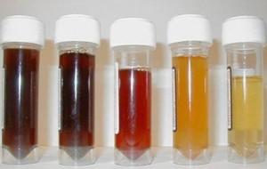 Blod i urinen – falsk alarm?