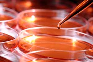 Petriskåler